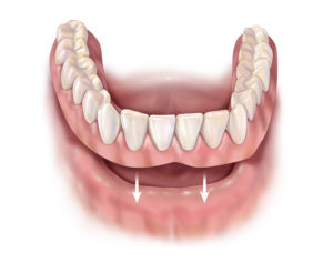 Partial Dentures Townsville | North Queensland Family Dental