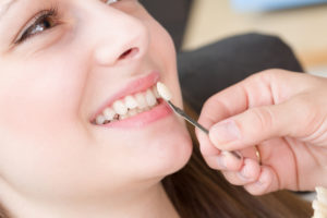 Veneers Townsville | North Queensland Family Dental