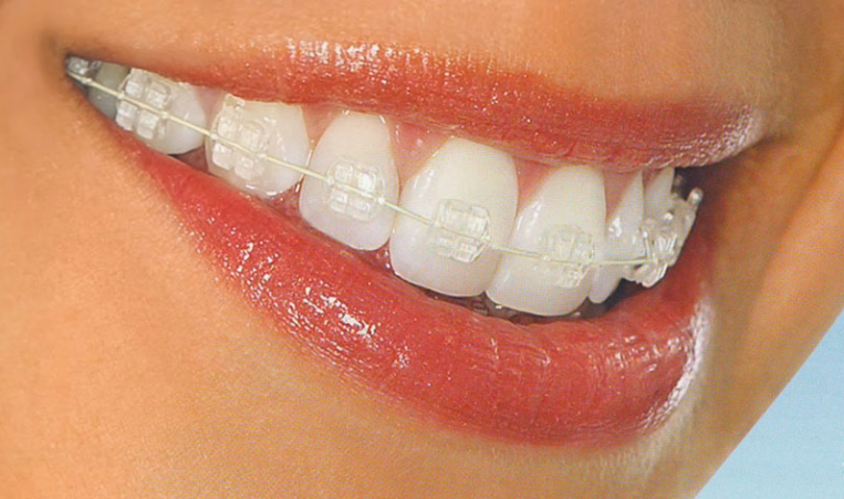 Smilefast™ Result Example | North Queensland Family Dental
